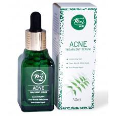Rivaj UK Acne Treatment Serum 30ml